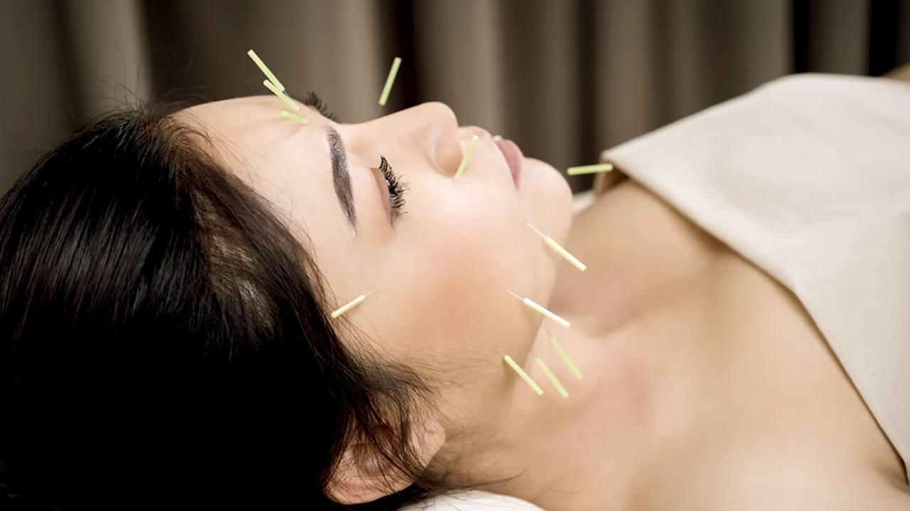 Kvinde får akupunktur i ansigtet
