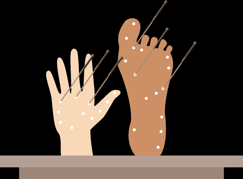 Animation af Akupunktur i fødder