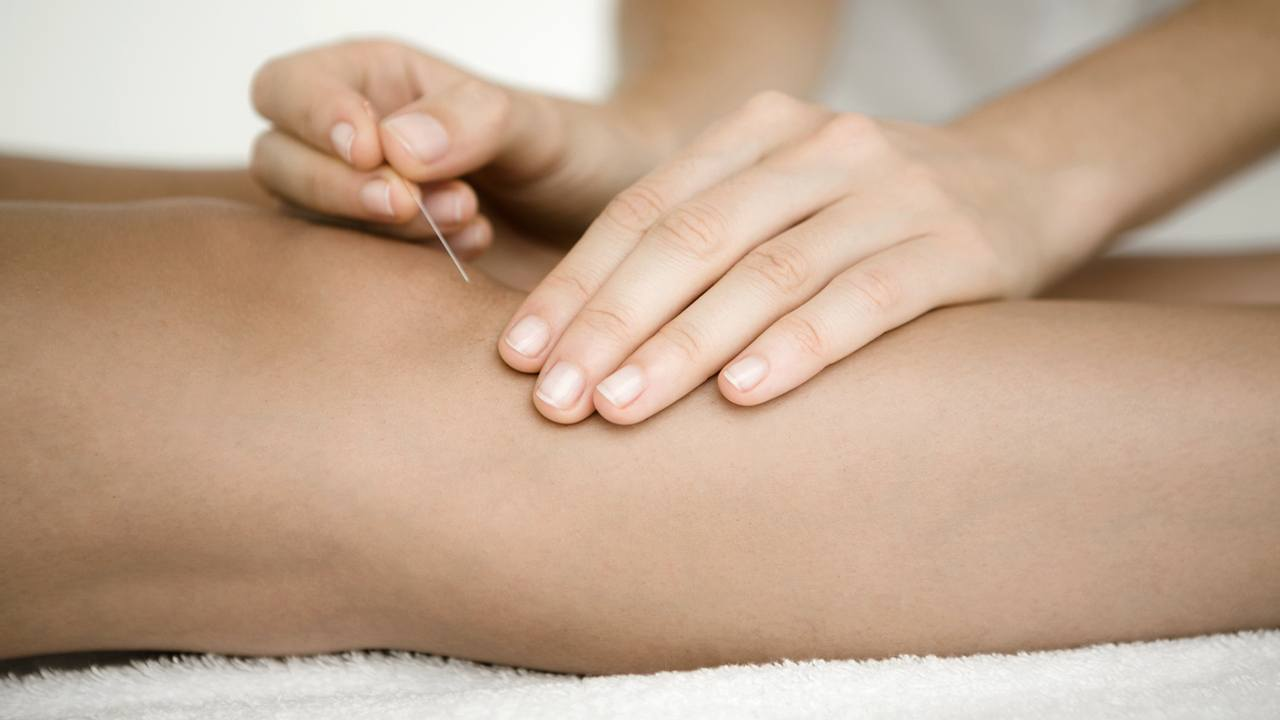 Akupunktur i knæet