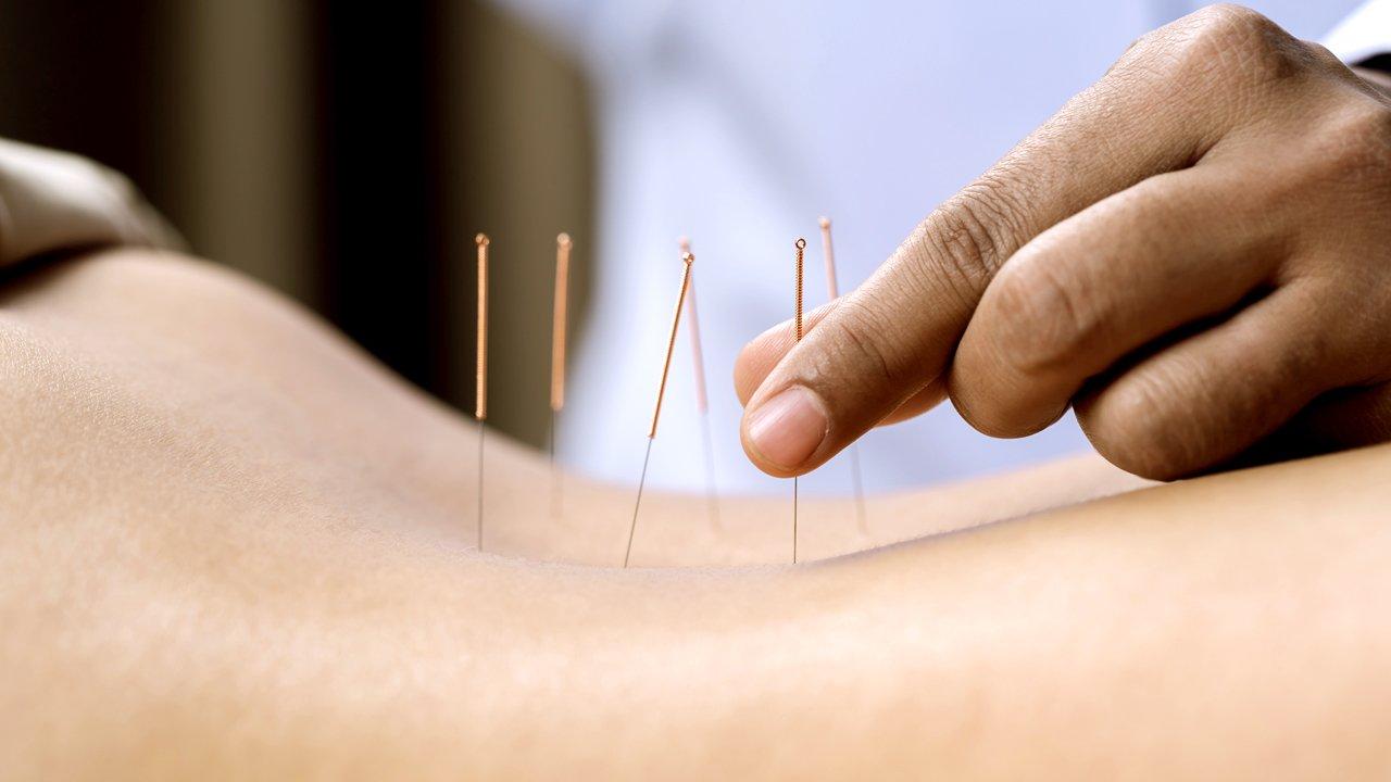 Akupunktur på ryggen