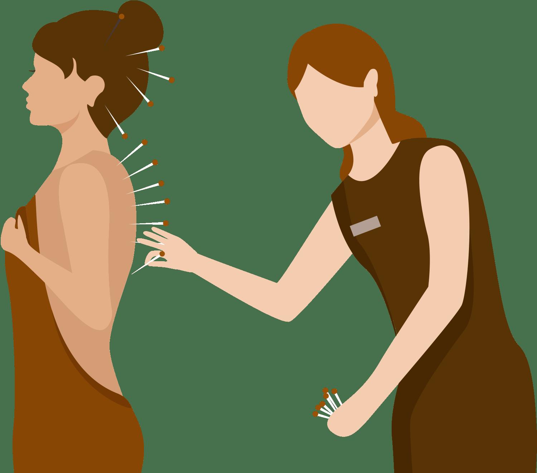 Animation af akupunktur