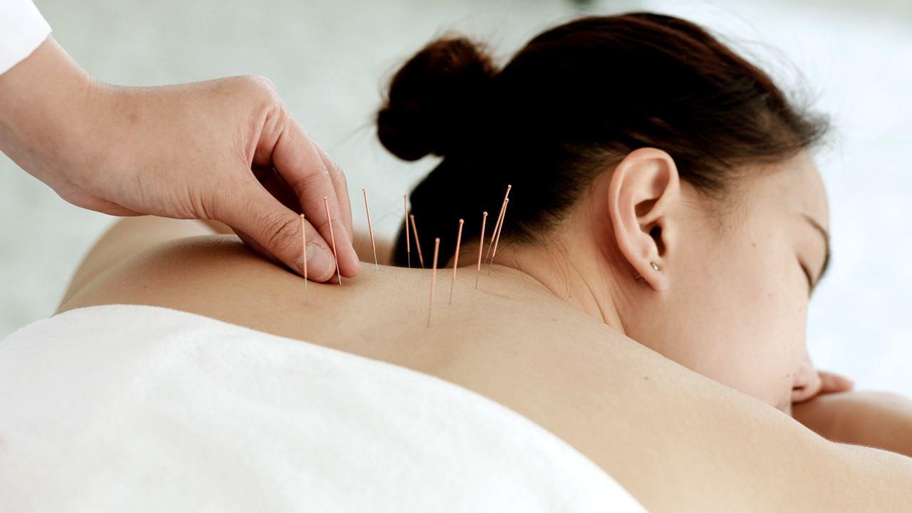 Kvinde får akupunktur på ryggen